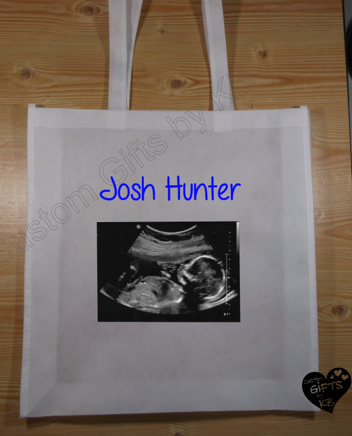 Ultrasound Baby tote bag